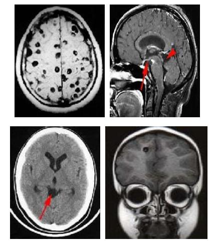 Hình ảnh nang sán trên phim chụp Ct scanner não