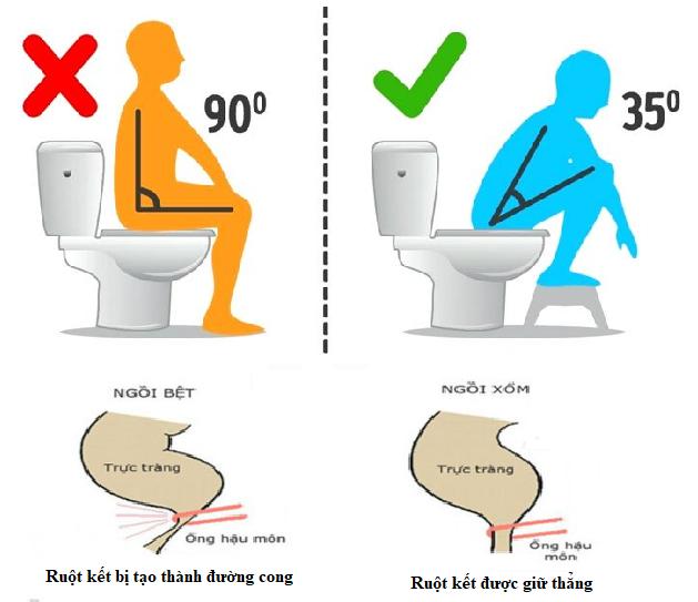 Đi vệ sinh sau khi ngủ dậy và ngồi đúng tư thế giúp đại tràng hoạt động tốt hơn