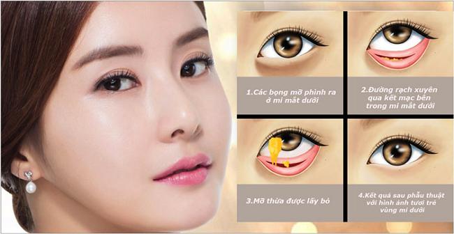 Quy trình phẫu thuật thẩm mỹ mí mắt