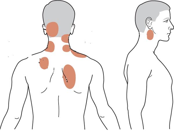 Các vị trí đau cổ gáy thường gặp