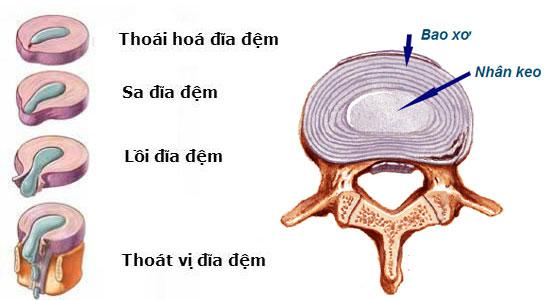 4 giai đoạn của thoát vị đĩa đệm