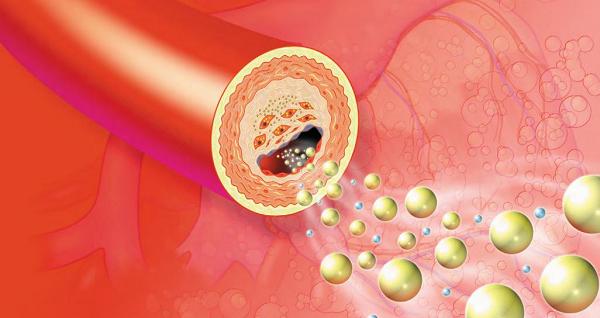 Rối loạn mỡ máu có nhiều tên gọi khác nhau như máu nhiễm mỡ, mỡ máu cao, rối loạn lipid máu