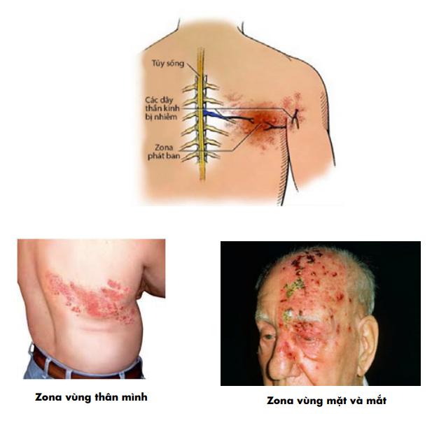triệu chứng của zona thần kinh