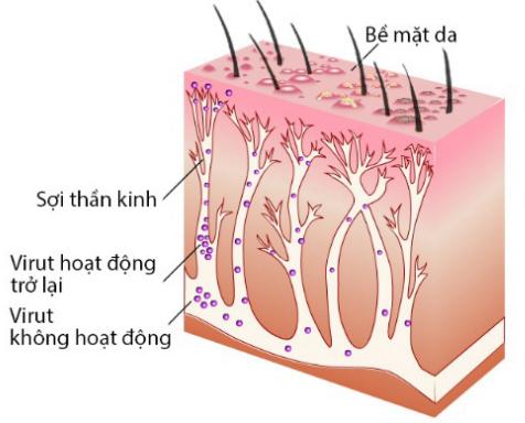 Vị trí hoạt động của virus gây bệnh Zona thần kinh