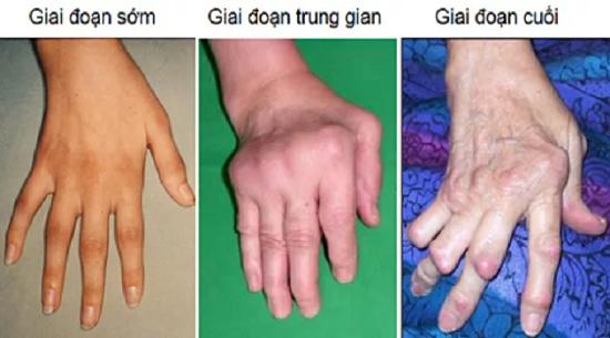 Hình ảnh tổn thương khớp bàn tay trong viêm khớp dạng thấp