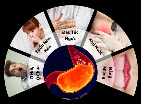 Các triệu chứng điển hình của bệnh trào ngược dạ dày thực quản.