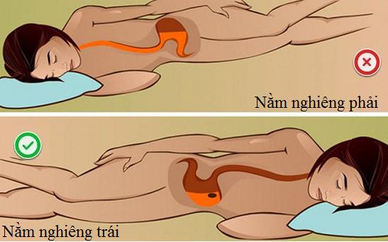 Nằm nghiêng bên trái tốt cho người bệnh trào ngược dạ dày