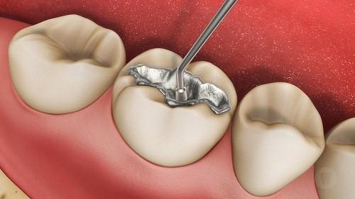 hàn răng bằng hỗn hợp chứa thủy ngân
