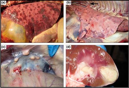 Tổn thương các tạng trong bệnh Melioidosis