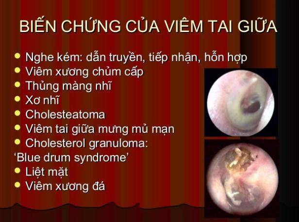 Một số biến chứng nguy hiểm của viêm tai giữa